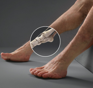 His lower ankle area has an extra joint for increased mobility
